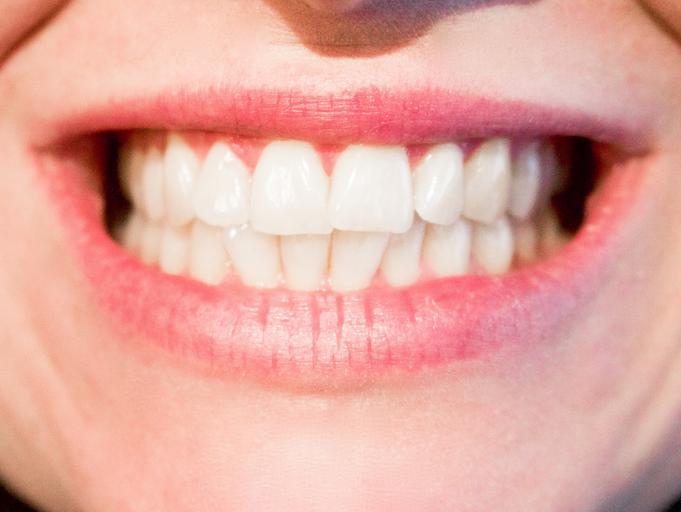 ukázka úsměvu s bílými zuby